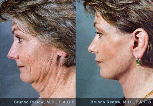 Does this facelift make me look more successful?